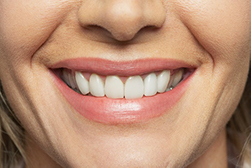 Close up shot of smiling mouth and straight healthy teeth from a woman in East Lyme, CT that went to East Lyme Oral and Maxillofacial Surgery